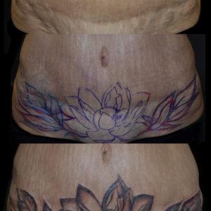 Copertura di cicatrice sul ventre con un fiore di loto in bianco e nero