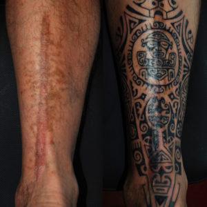 Copertura di una cicatrice con un tatuaggio marchesano