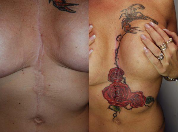 Copertura cicatrice con rose