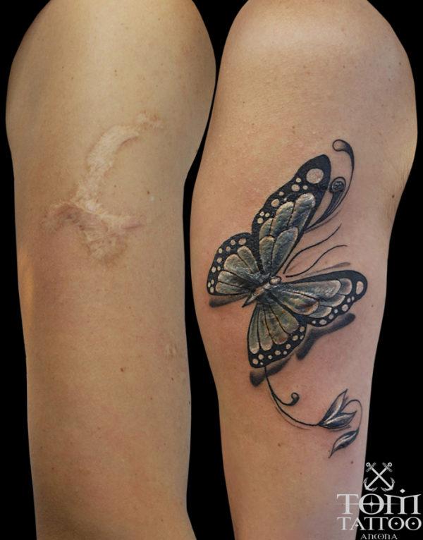 Copertura cheloide con farfalla traditional