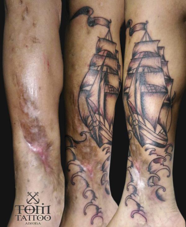 Copertura di una cicatrice con un velieri traditional